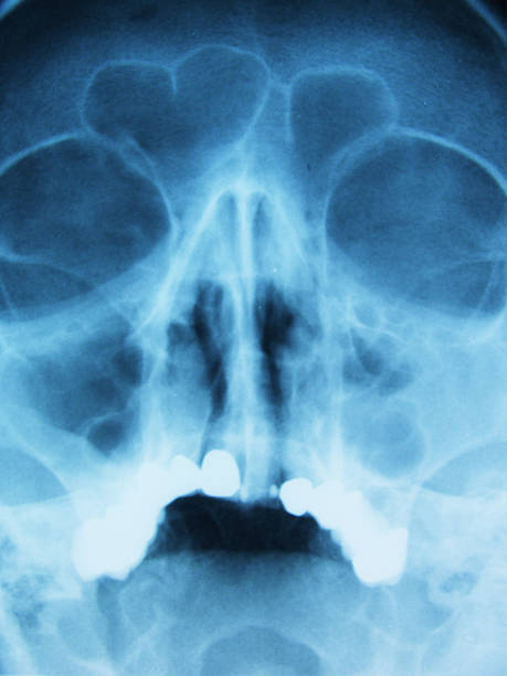 X-ray head stock photo