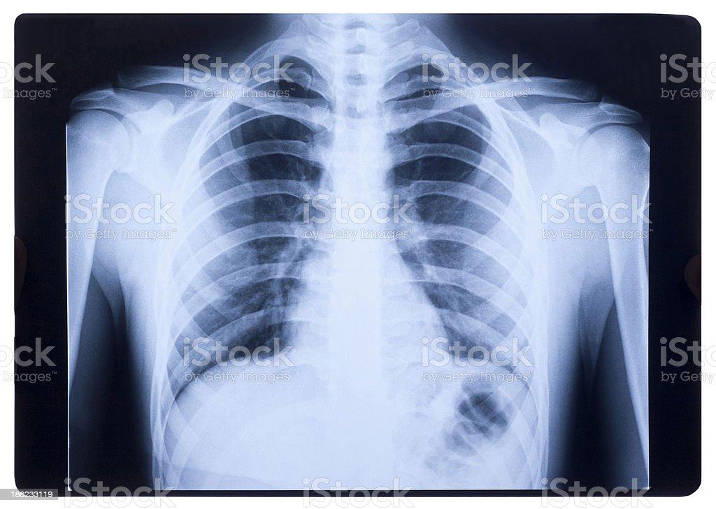 X-ray, Human Chest stock photo