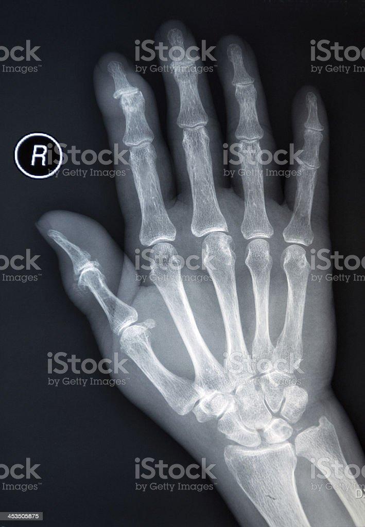 Xray Human Hand Stock Photo & More Pictures of Anatomy   iStock