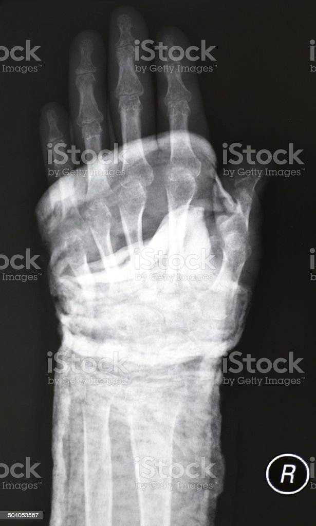 Xray Human Hand With Plaster Immobilization Stock Photo & More ...