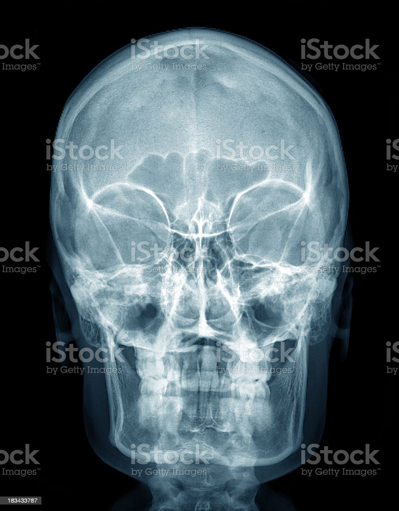 X-ray Human Head stock photo
