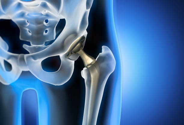 X-ray illustration of hip replacement stock photo