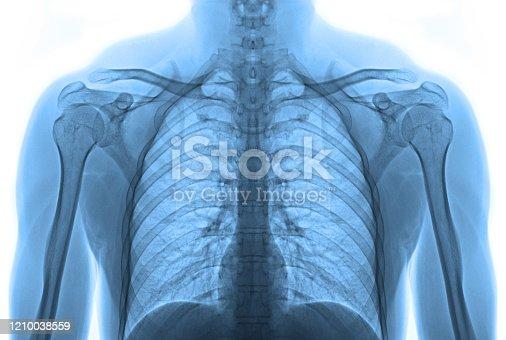 836113342 istock photo X-ray image body isolated 1210038559