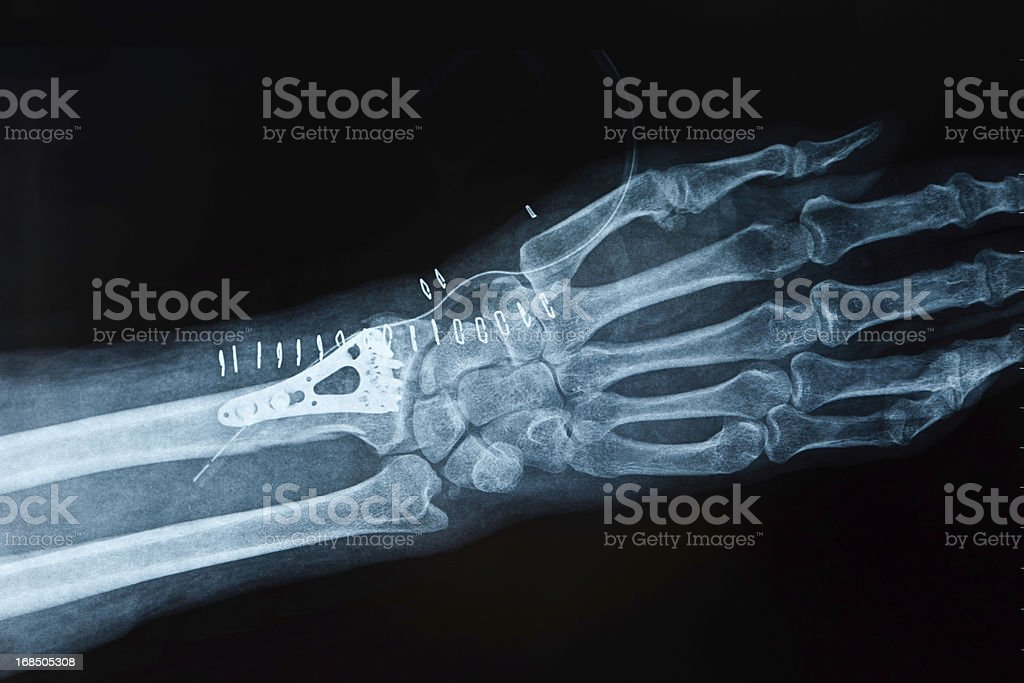 X-ray image hand fracture stock photo