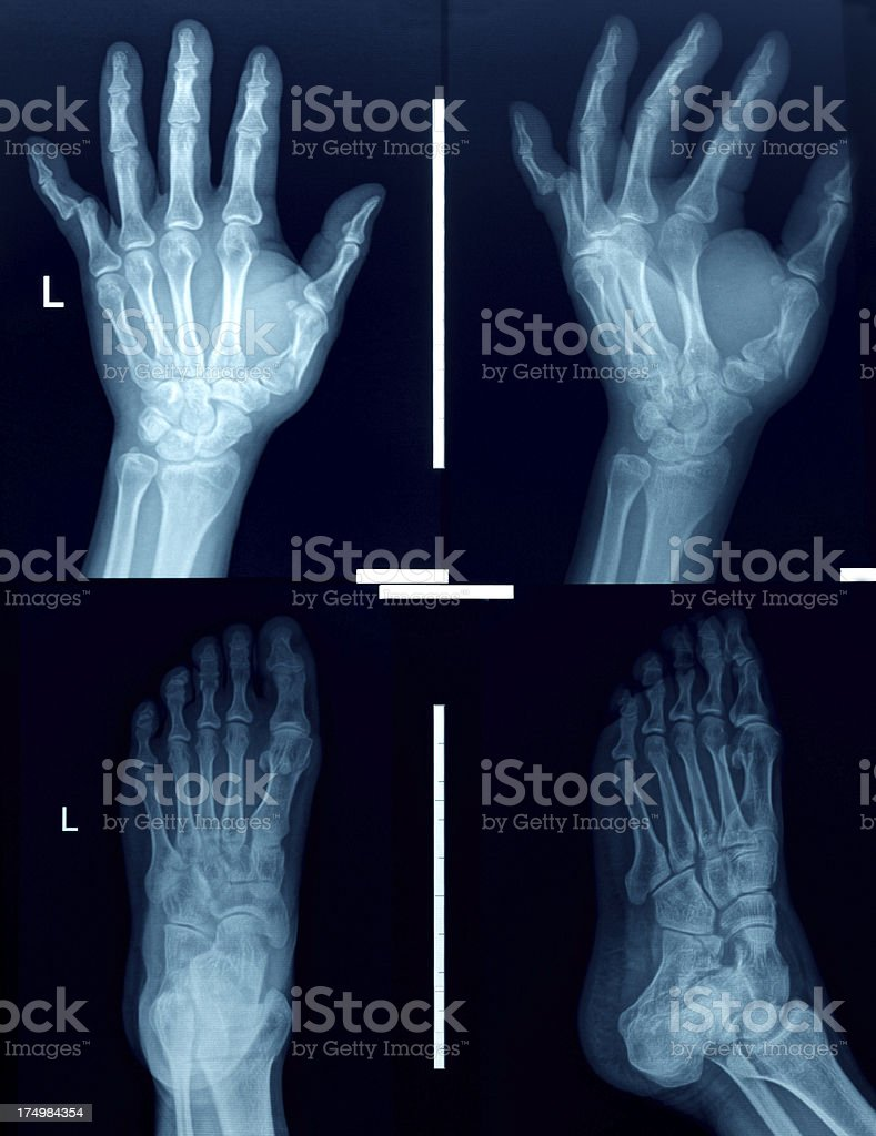 X-ray image hands and Foot stock photo