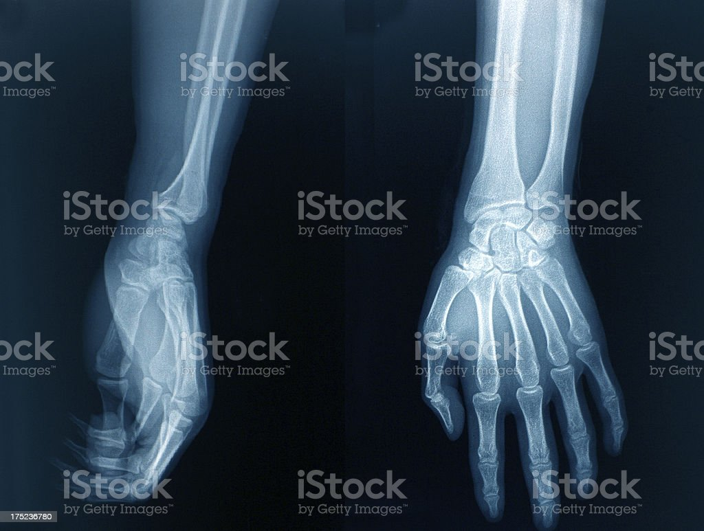 Xray Image Hands Stock Photo More Pictures Of Anatomy Istock