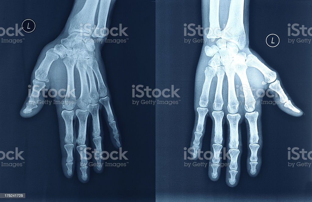 X-ray image hands stock photo