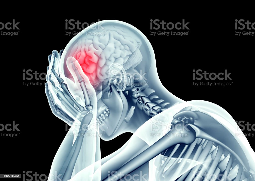 image au rayon x Tête humaine avec douleur - Photo