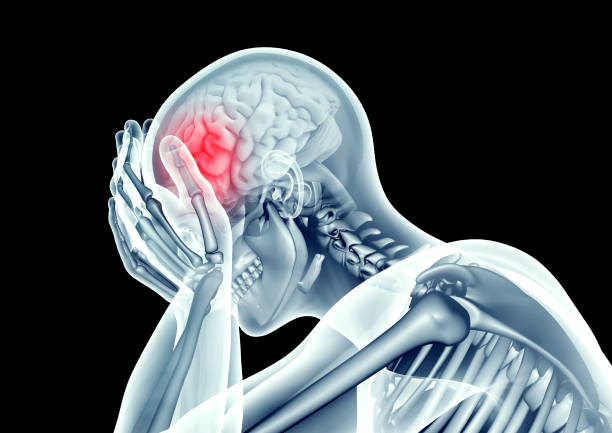 x-ray image human head with pain - head injury stock photos and pictures