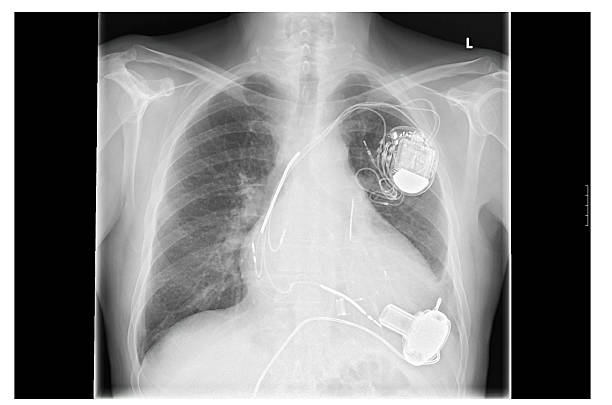 X-ray image, links, artificial heart pacemaker Radiograph left side of the chest. Heart with implanted pacemaker system. Below are the pump of the heart assist system. pacemaker stock pictures, royalty-free photos & images