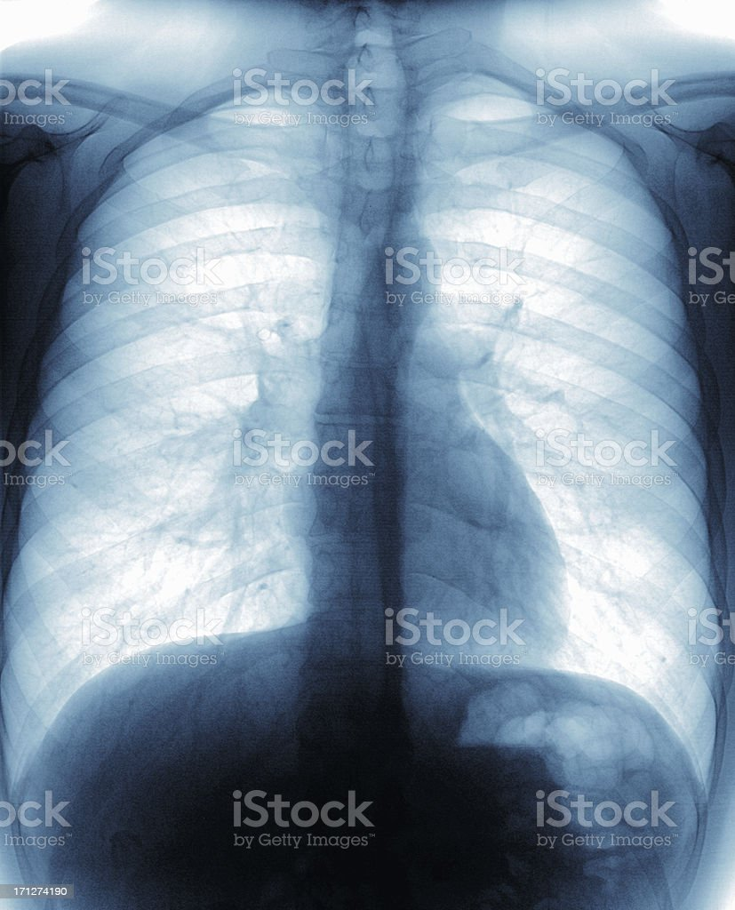 X-ray image of a healthy cheat stock photo