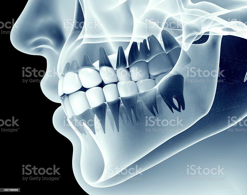 x-ray Bilder von einer Kiefer mit Zahn – Foto