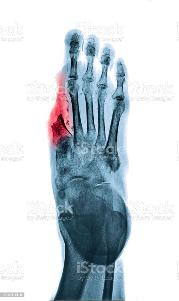 X-ray image of amputated big toe in diabetic patient. Reverse process to white tone. stock photo