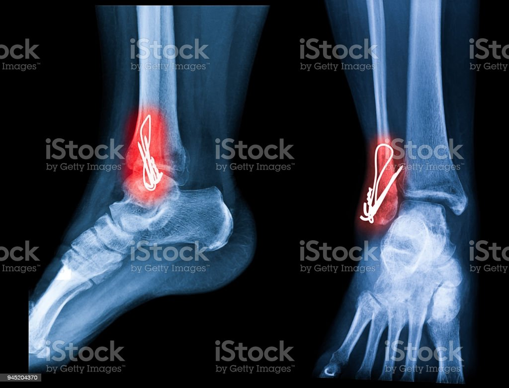 Xray Image Of Ankle Fracture Broken Ankle Pott Fracture Fix By Open