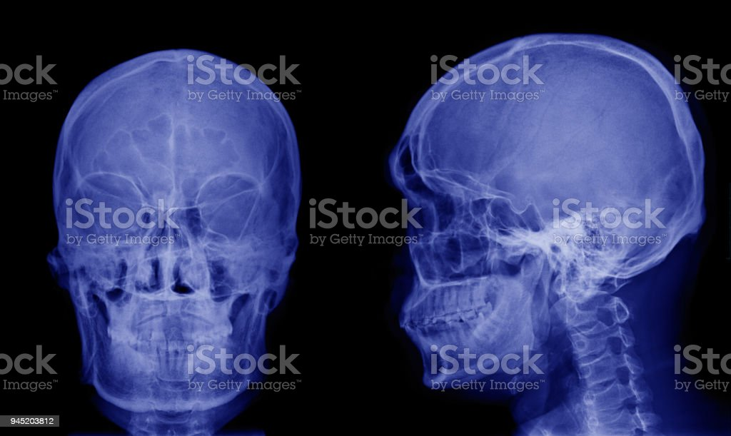 Xray Image Of Asian Skull Front View And Side View Stock Photo ...