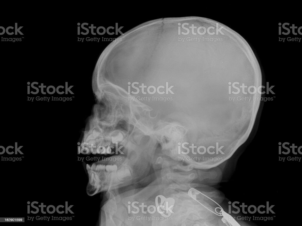 Xray Image Of Baby S Skull Stock Photo & More Pictures of Anatomy ...