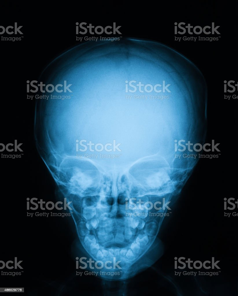 X-ray image of baby skull, front view. stock photo