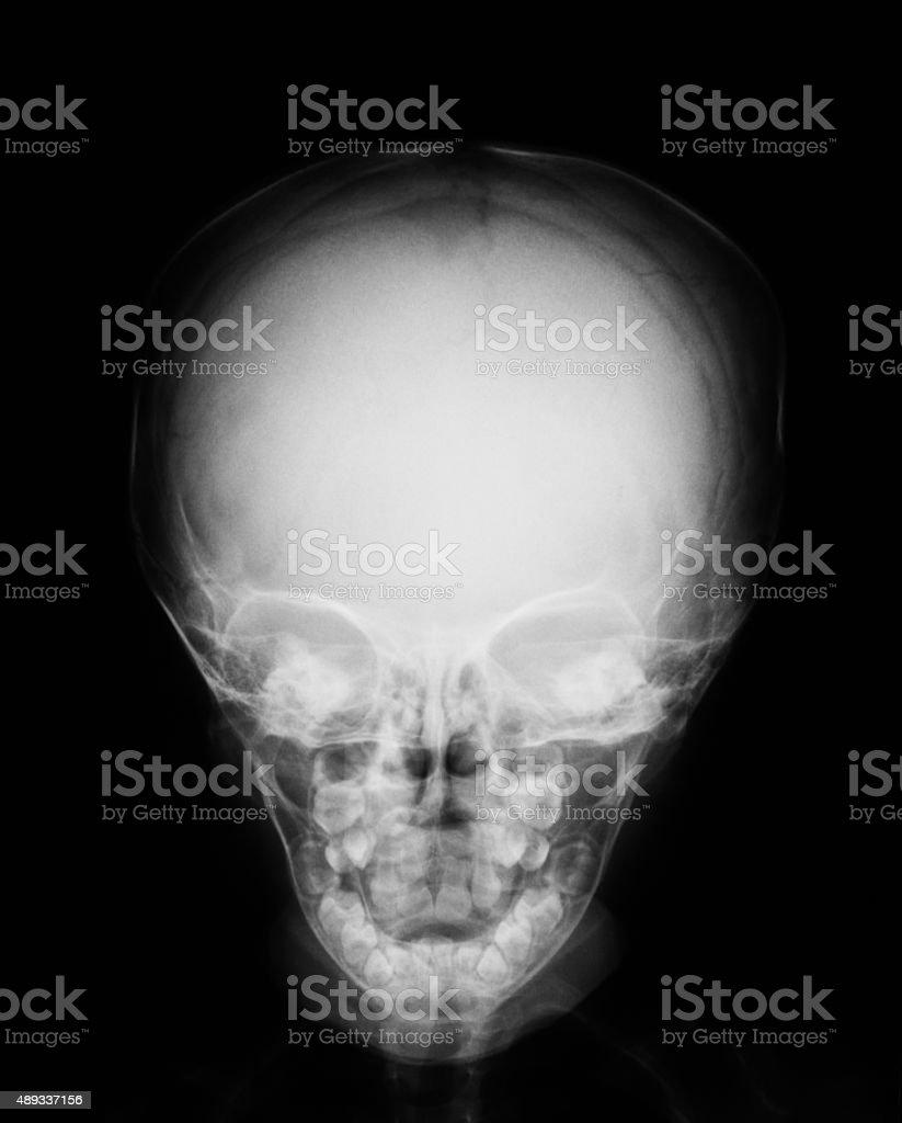 X-ray image of baby skull stock photo