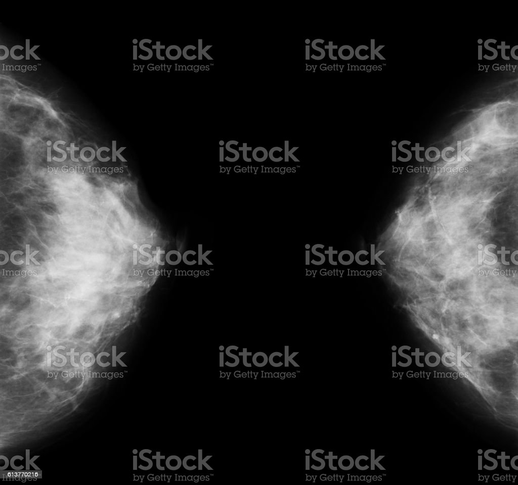 X-ray image of bilateral breast, mammography stock photo
