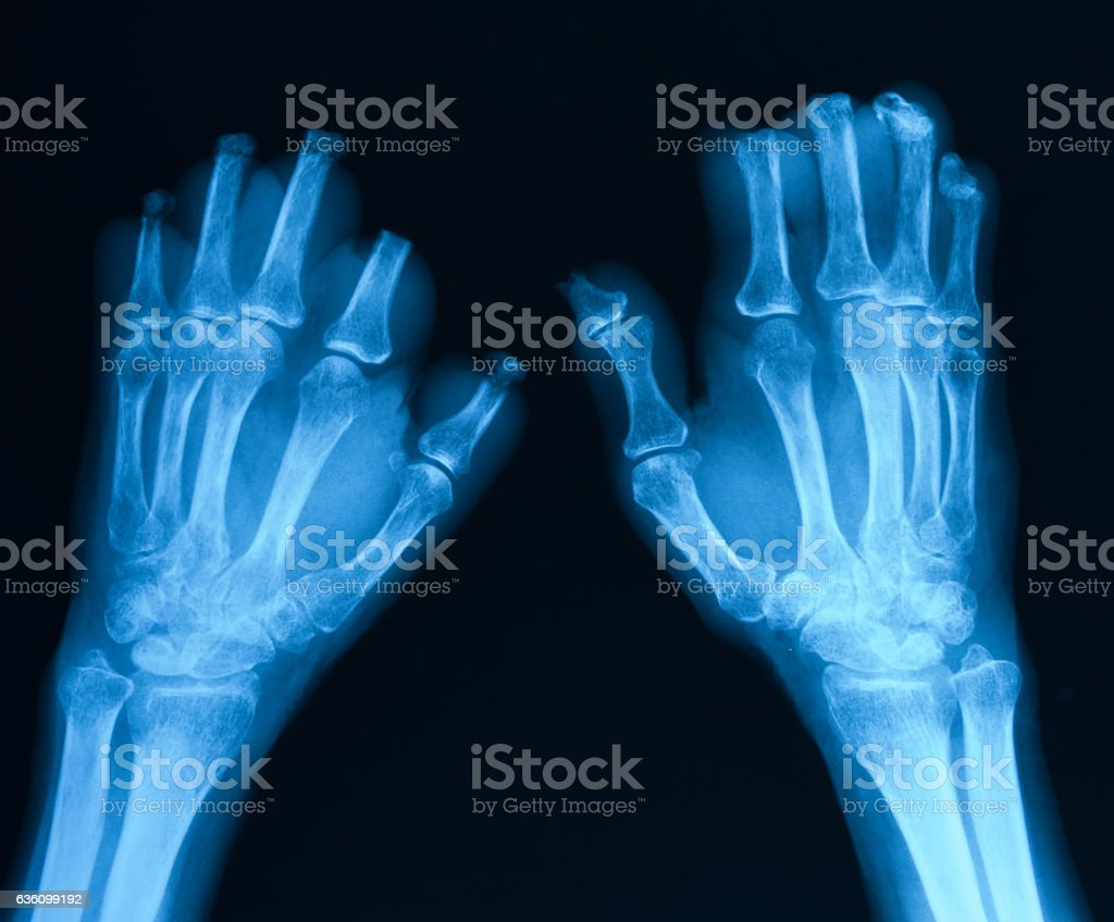 X-ray image of bilateral  hands, posteroanterior view stock photo