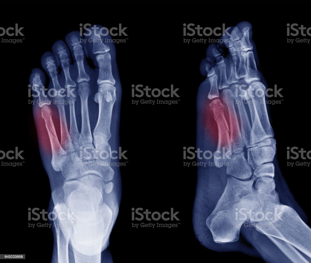x-ray image of bone fracture at 5th Metatarsal left foot stock photo