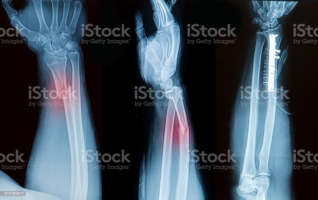 x-ray image of borken forearm bone show pre- post operation stock photo