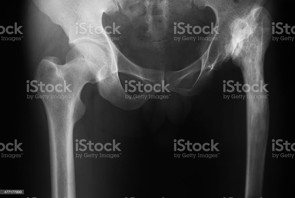 X-ray image of both hip, AP view. stock photo