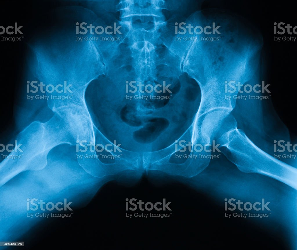 X-ray image of both hip, frog-leg Position, show hip osteoarthritis stock photo