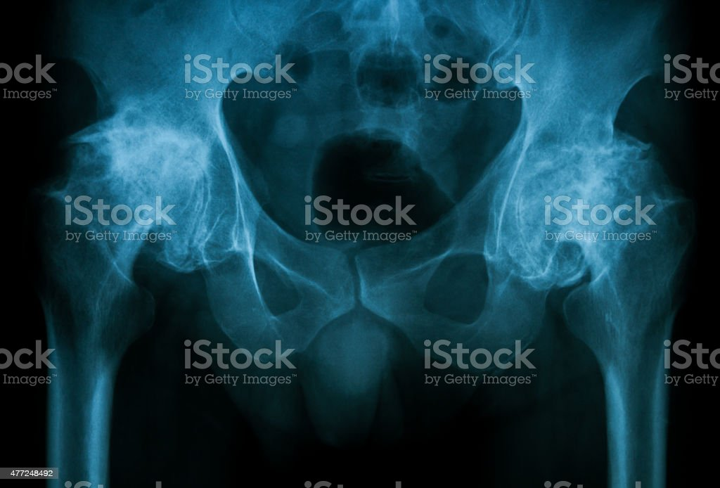 X-ray image of both hip, show osteoarthritis. stock photo