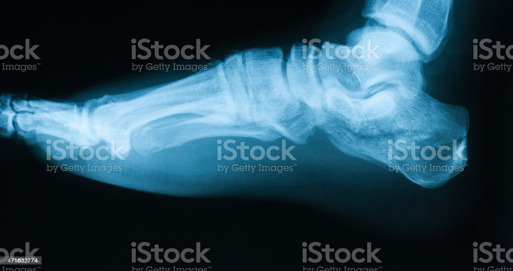 Xray Image Of Broken Calcaneus Lateral View stock photo | iStock