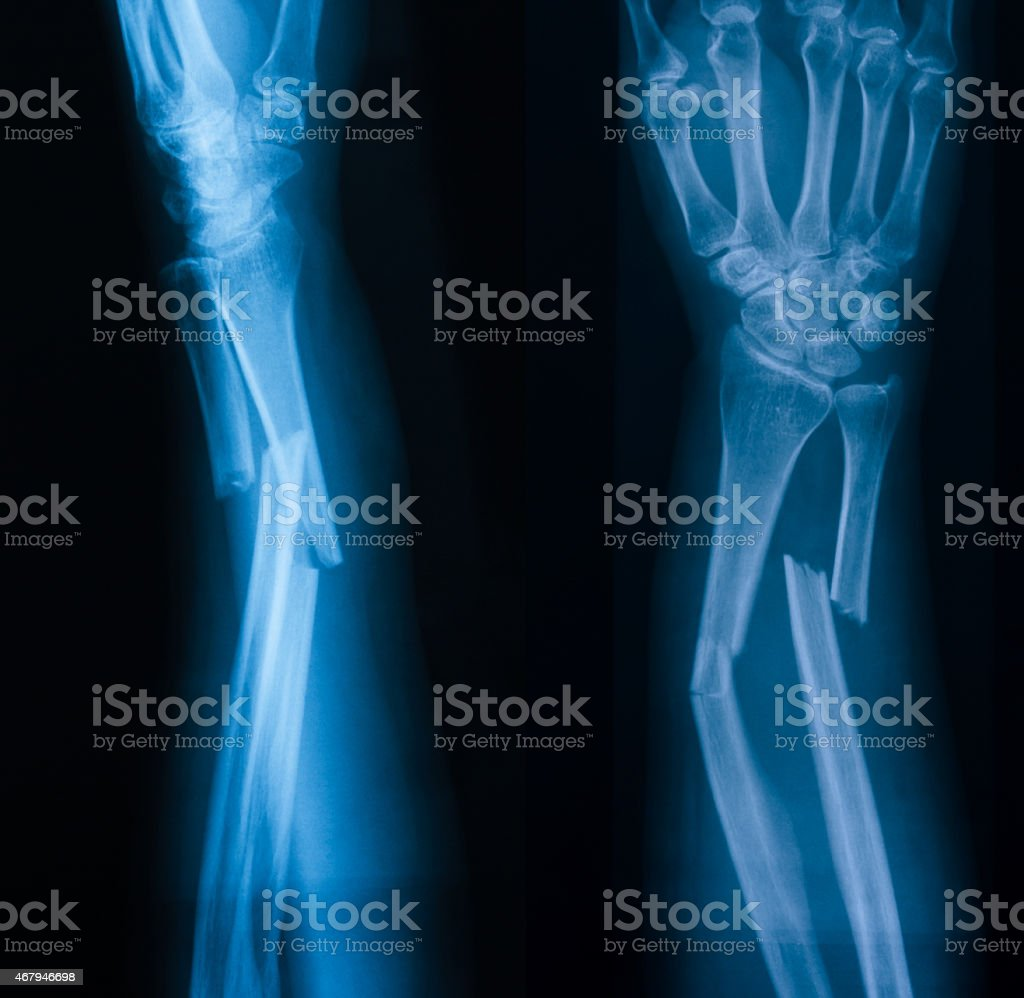 X-ray image of broken forearm, AP and lateral view stock photo