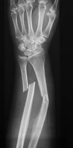 Royalty Free Broken Arm Xray Pictures, Images and Stock ...
