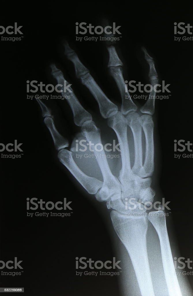 Xray Image Of Broken Forearm Stock Photo & More Pictures of Anatomy ...
