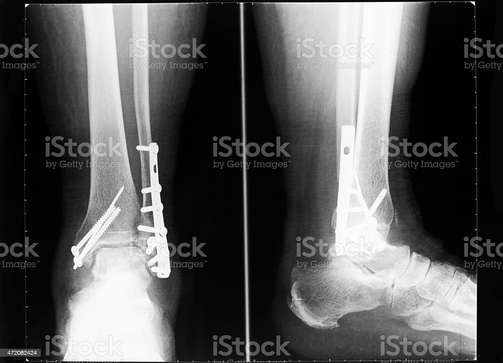 X-ray image of broken human ankle after surgically fixated stock photo