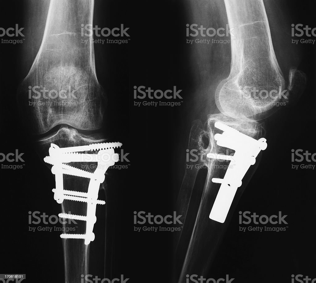 X-ray image of broken legs with osteosynthetic material stock photo