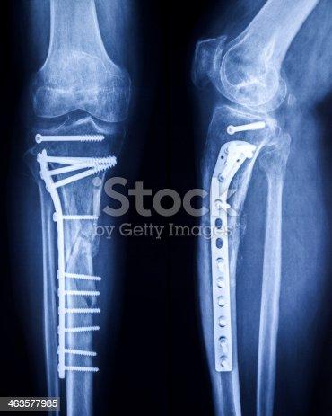 Xray Bilder Von Gebrochenen Bein Mit Osteosynthetic Material Stock ...