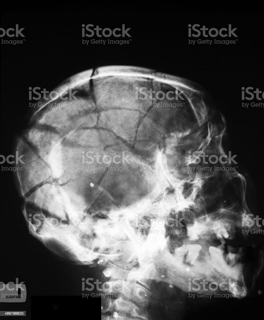 X-ray image of broken skull, lateral view stock photo