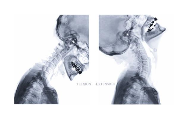 X-ray Image der Halswirbelsäule seitlichen Beugung und Erweiterung anzeigen. – Foto