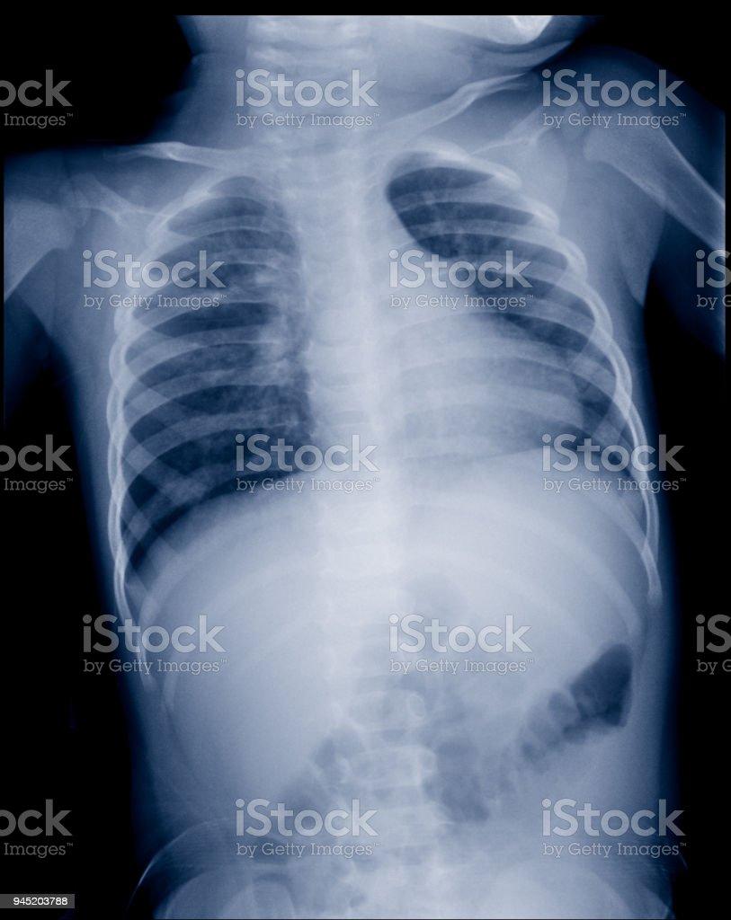 Atemberaubend X Ray Brust Anatomie Zeitgenössisch - Menschliche ...