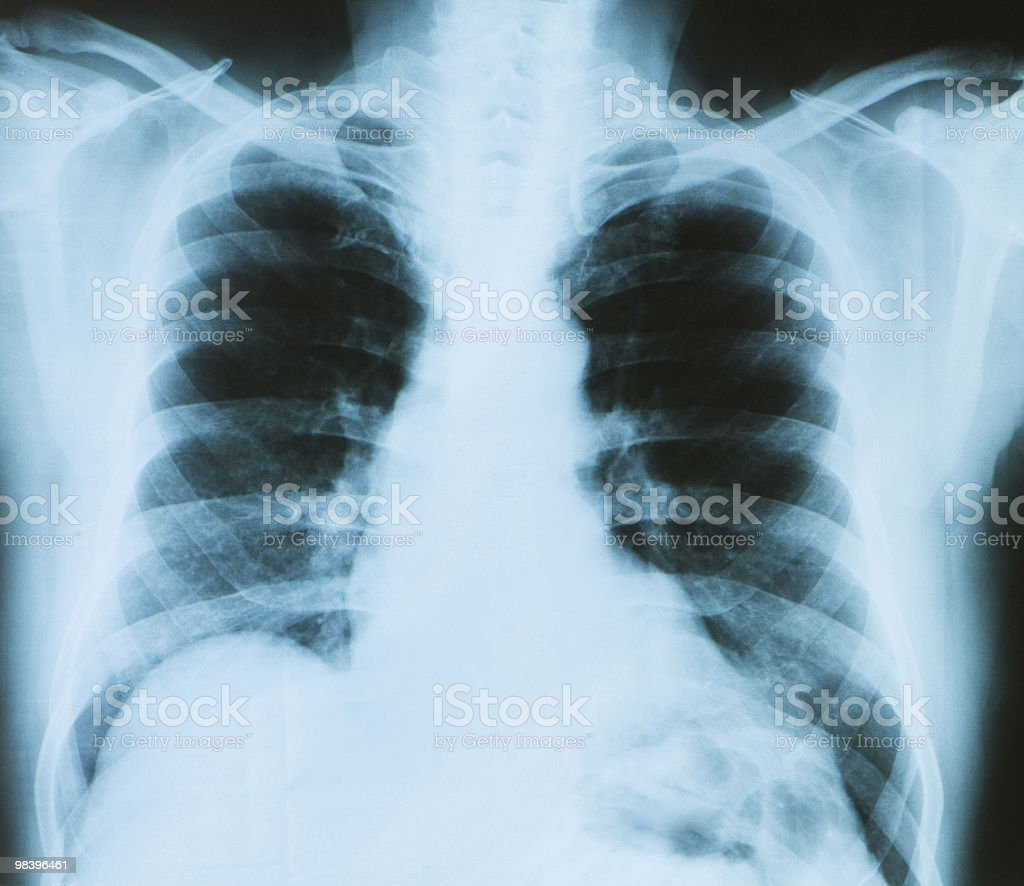 X-ray image of chest bones royalty-free stock photo