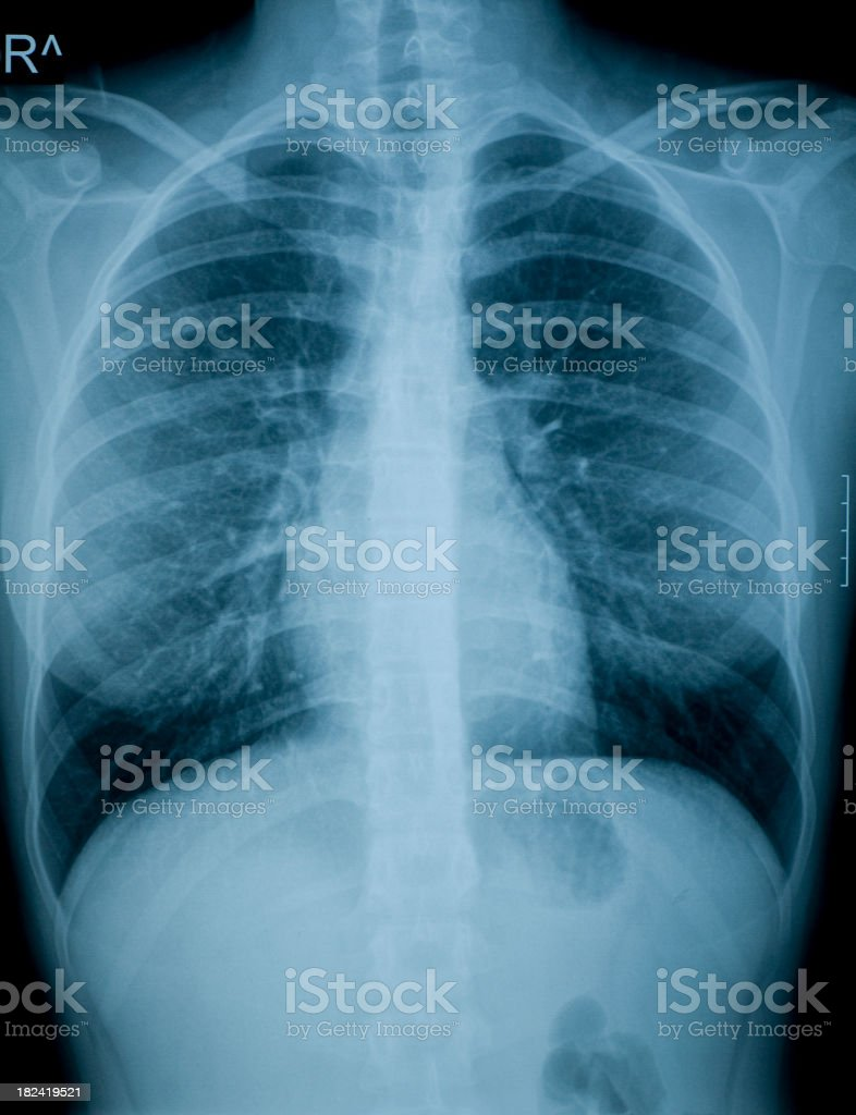 X-ray image of chest royalty-free stock photo