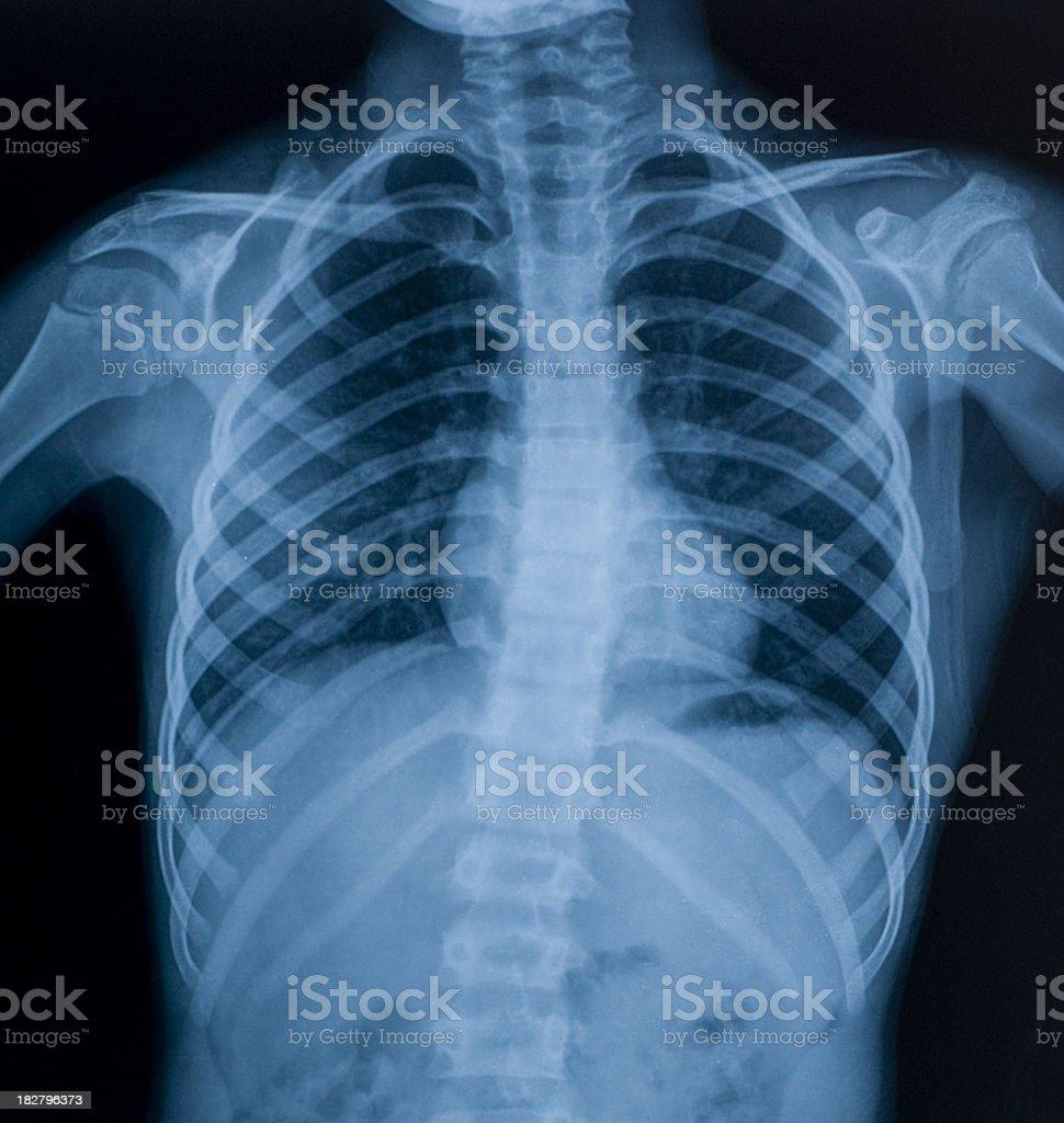 Xray Image Der Brust Stock-Fotografie und mehr Bilder von Anatomie ...