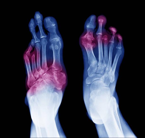 radiografía de pies diabéticos, vista posterior mostrar amputación dedos y articulaciones inflamadas - gangrena fotografías e imágenes de stock