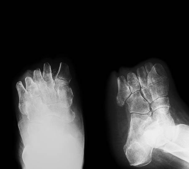 X-ray image of diabetic foot amputation, AP and oblique view stock photo