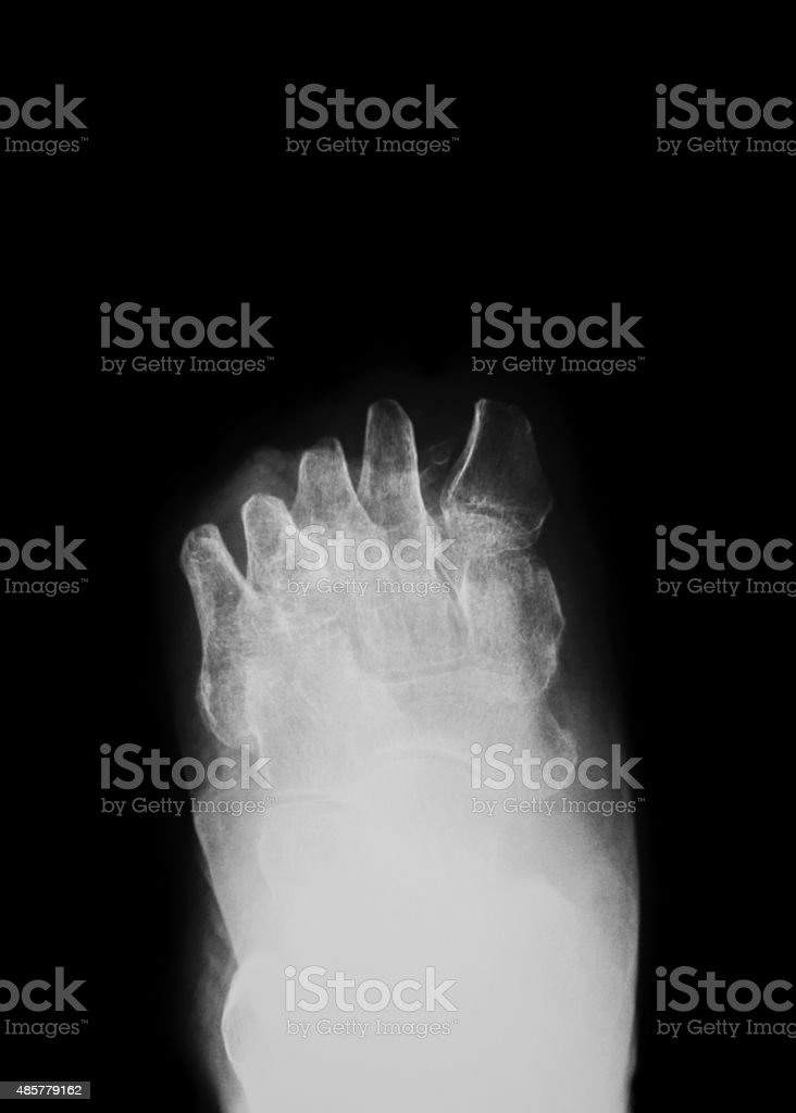 X-ray image of diabetic foot amputation,  AP  view stock photo