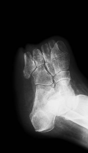 X-ray image of diabetic foot amputation,  oblique view stock photo
