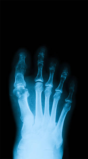 X-ray image of diabetic foot, anteroposterior view. stock photo