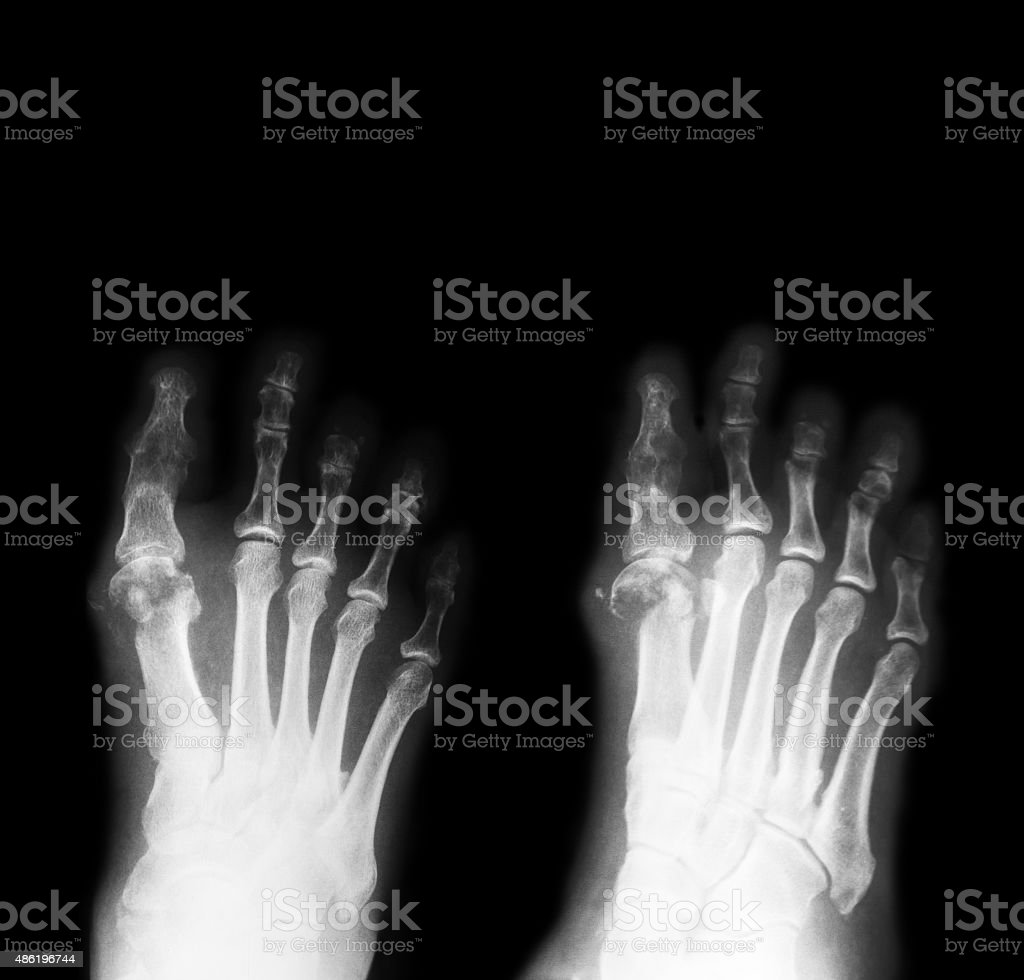 X-ray image of diabetic foot, AP and oblique view. stock photo