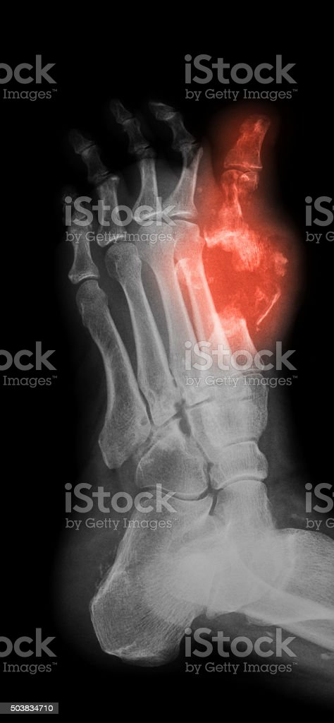 X-ray image of diabetic foot, oblique view. stock photo