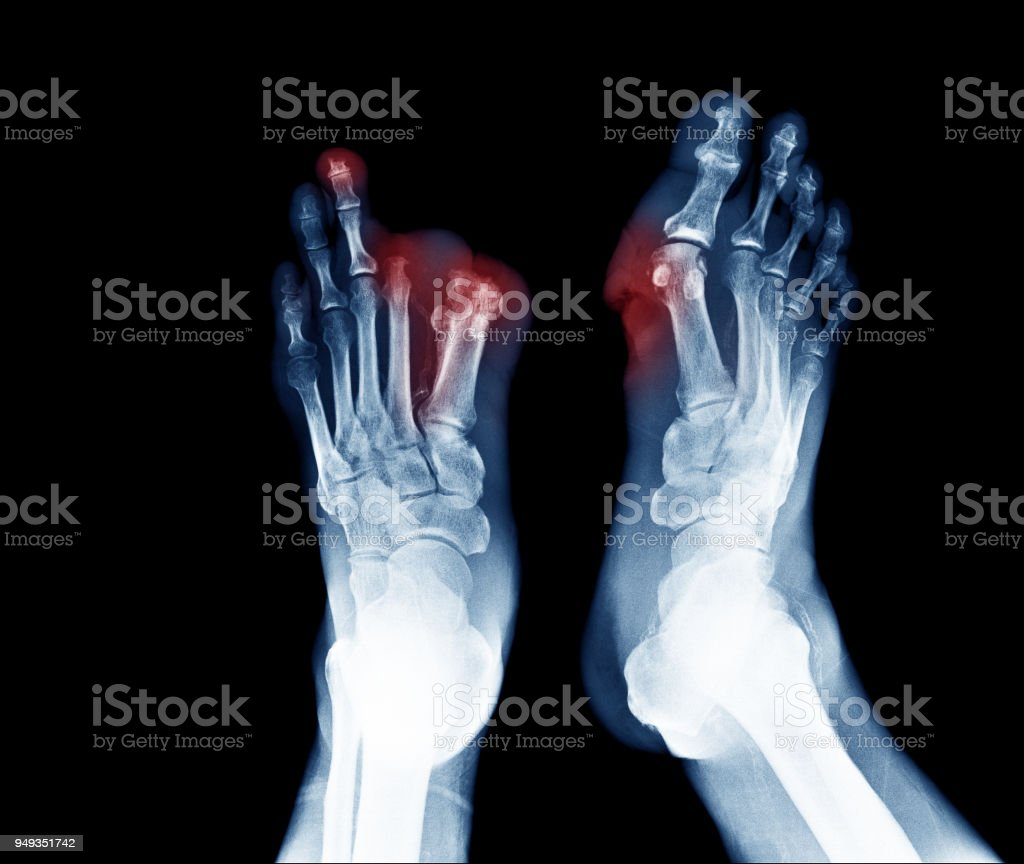 Xray image of diabetic foot ulcer show Joints Collapse and toes amputation stock photo